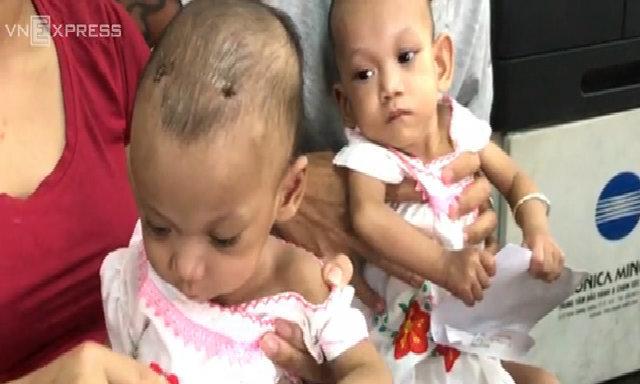 Cuộc sống độc lập của hai bé song sinh sau khi được mổ tách